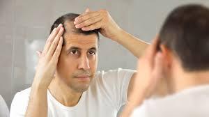 Hair Loss Solution for Men