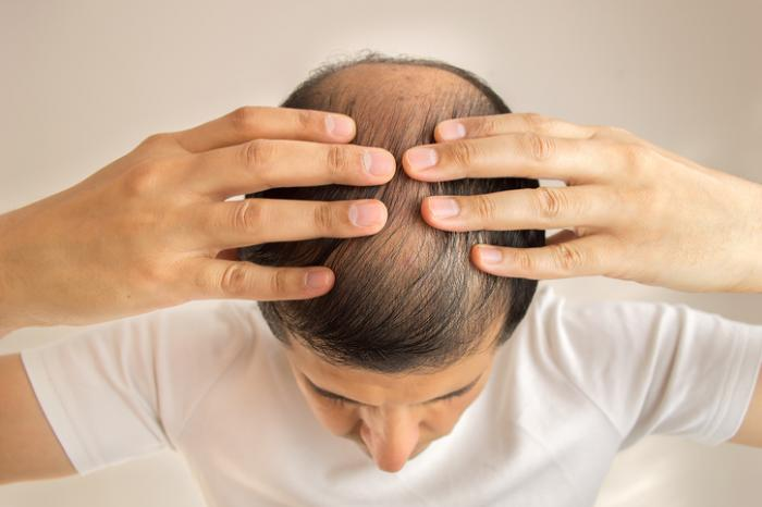 Hair Growth System for Men