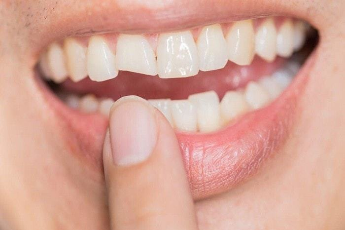 Take A Look At These Teeth Whitening Tips